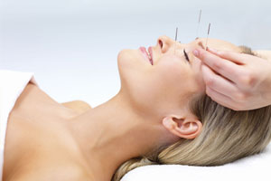 Acupuncture Cost